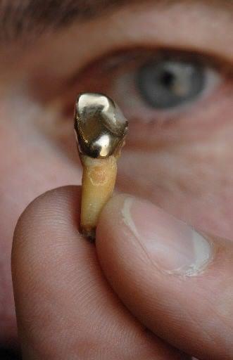 Dental gold's new luster
