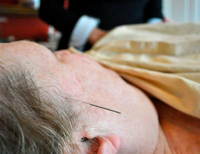 Points against pain Acupuncture grows in popularity as complementary healing therapy
