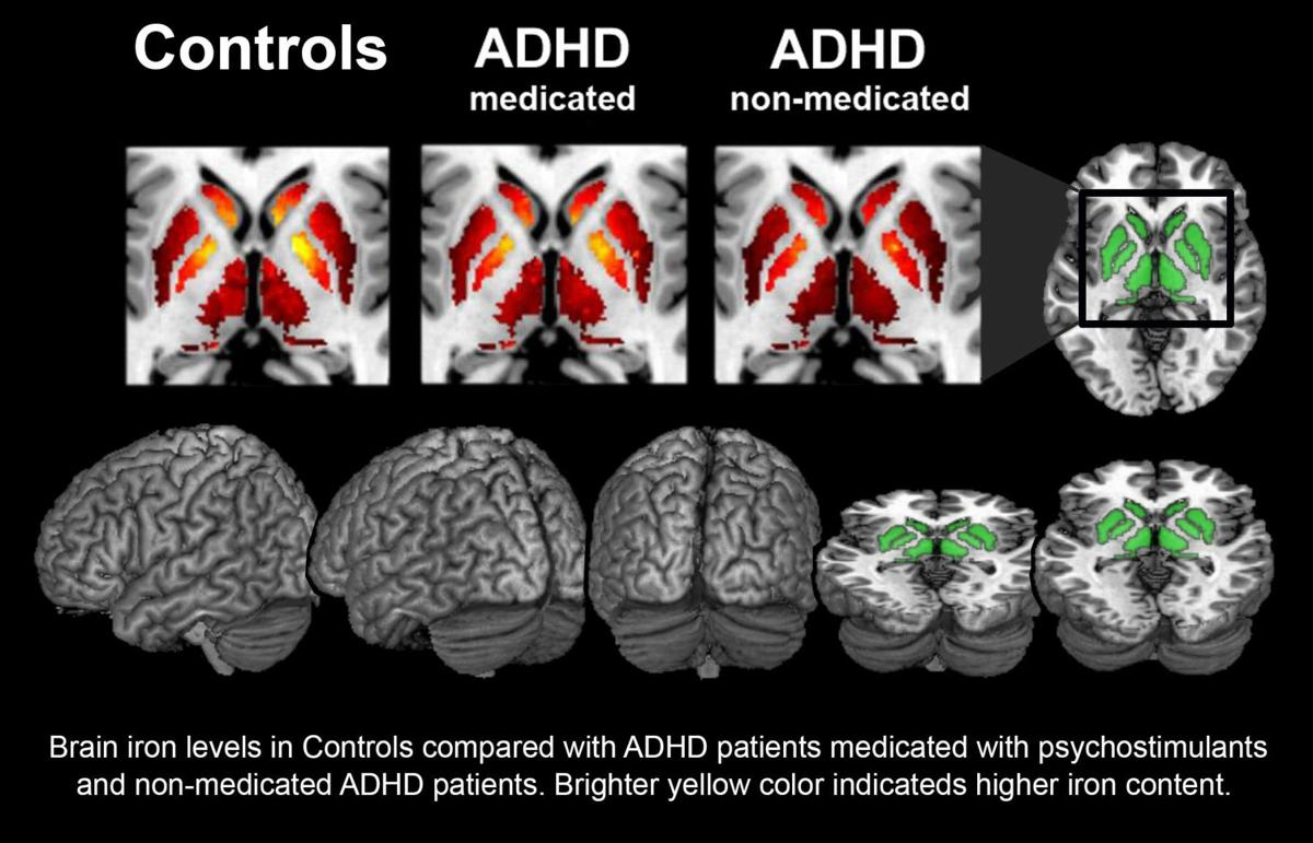 Charleston Scientists Study Iron Levels In Brain To Diagnose ADHD
