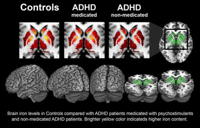 Mri Shows Brain Differences Among Adhd >> Charleston Scientists Study Iron Levels In Brain To Diagnose Adhd In