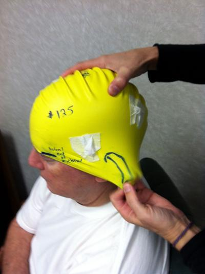 New hope for stroke patients