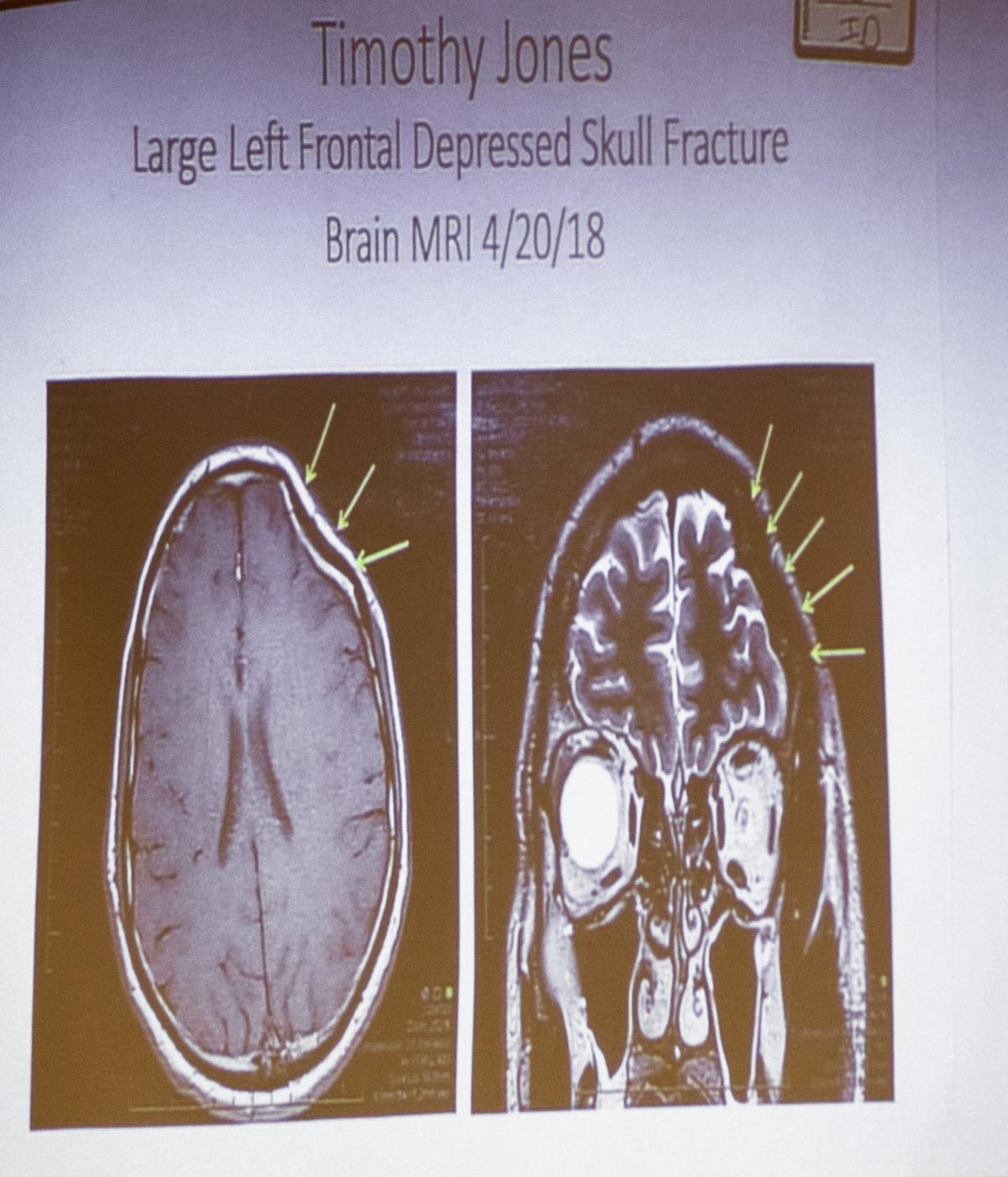 Tim Jones trial brain MRI