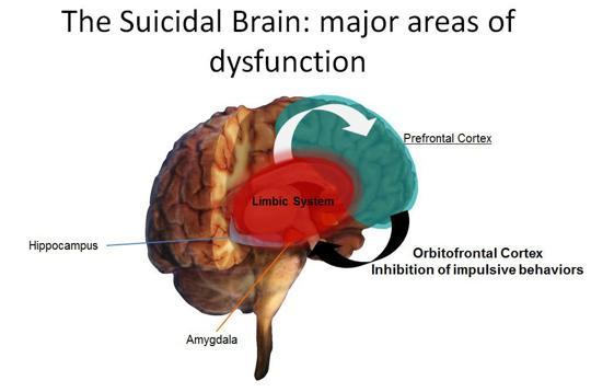 The suicidal brain