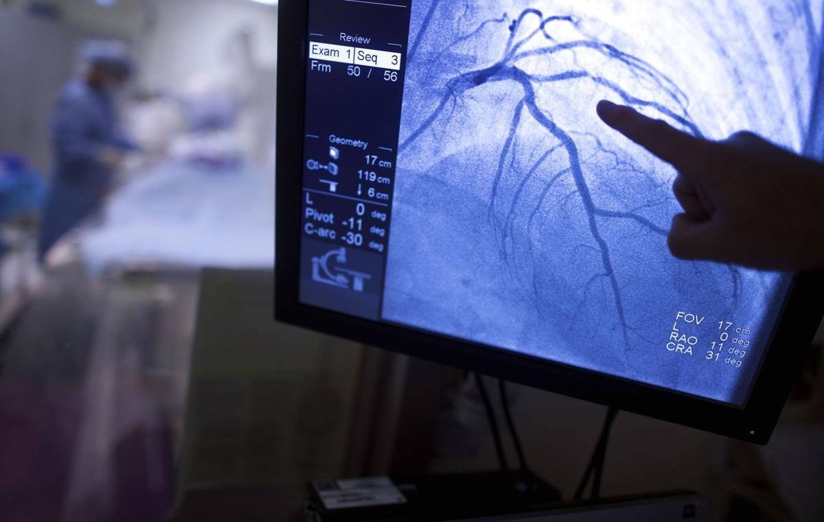 Institute's study putting heart stents to the test