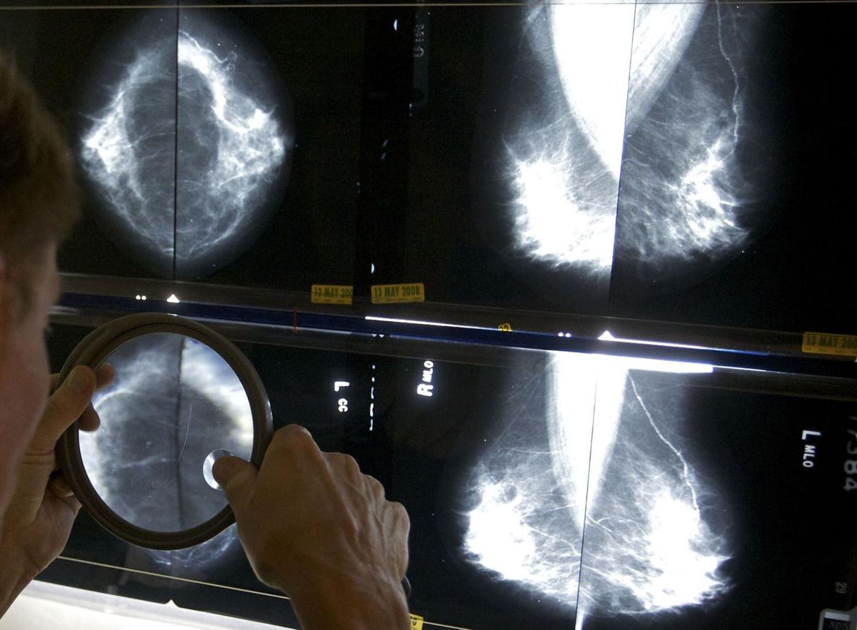 Doctor group seeks to clear cancer screening confusion
