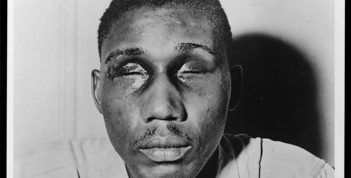 Column: A cop gouged out a black vet's eyes  73 years later