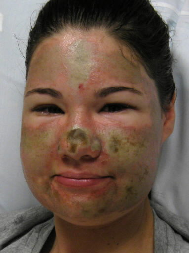 Police say Wash. acid attack self-inflicted