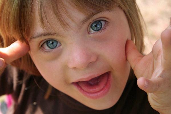 Local girl Kayla Helferich named 'Most Beautiful Eyes' finalist