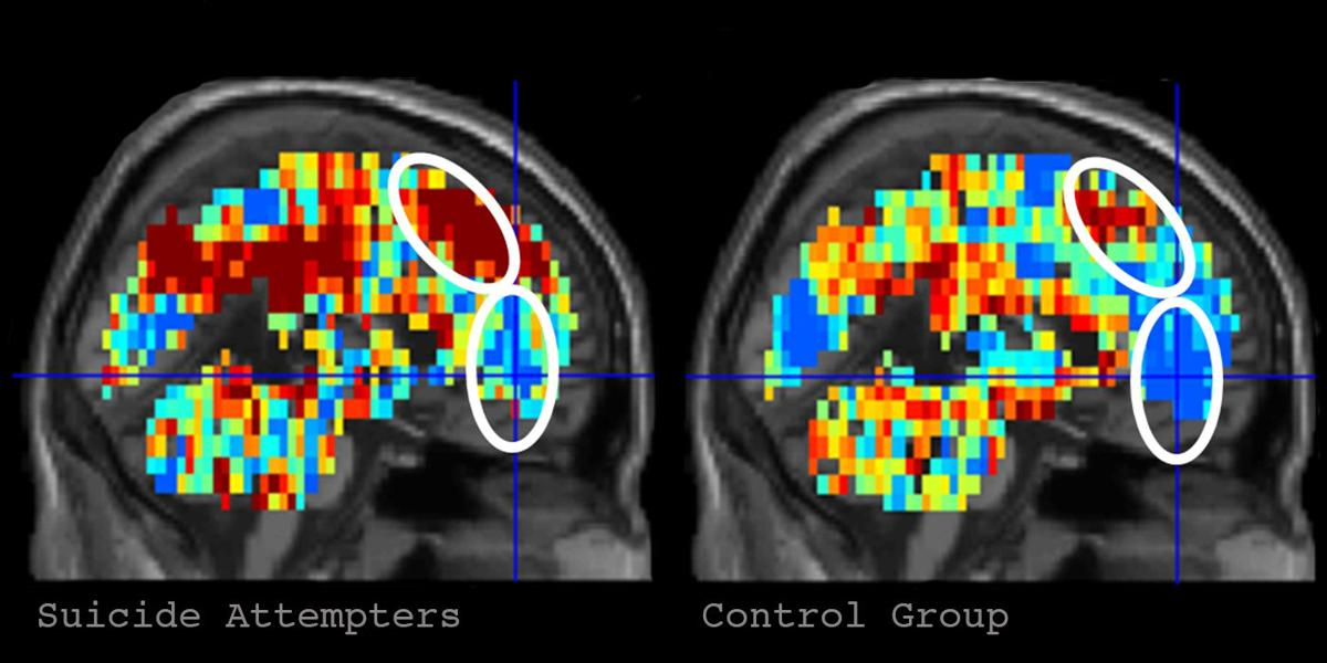 Brain imaging of people who have made suicide attempts
