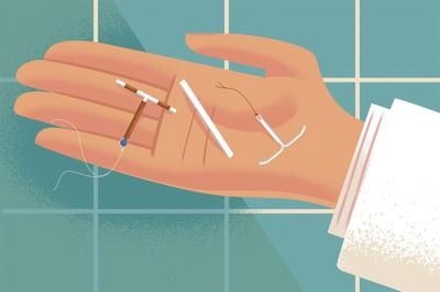 IUDs, hormonal implants are underused contraceptives