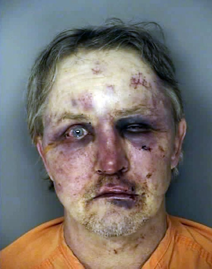 Conway man suspected of sexual assault beaten, arrested