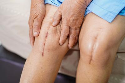 Managing pain after knee replacement surgery