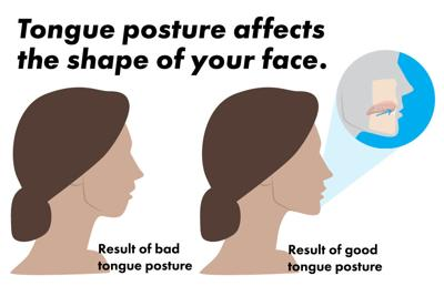 Tongue posture graphic