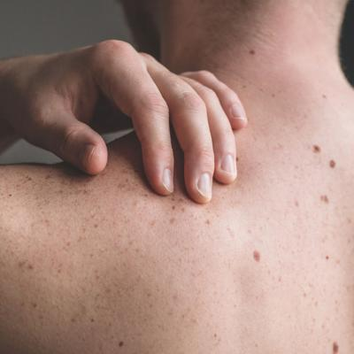 Mansfield dermatologist says how to reduce your risk of skin cancer this summer