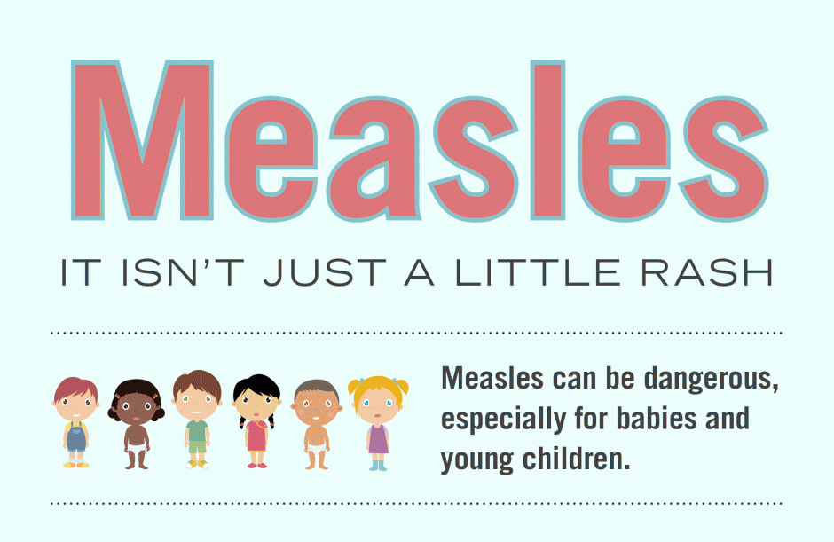 Ohio's 1st 2019 case of measles diagnosed in Stark County