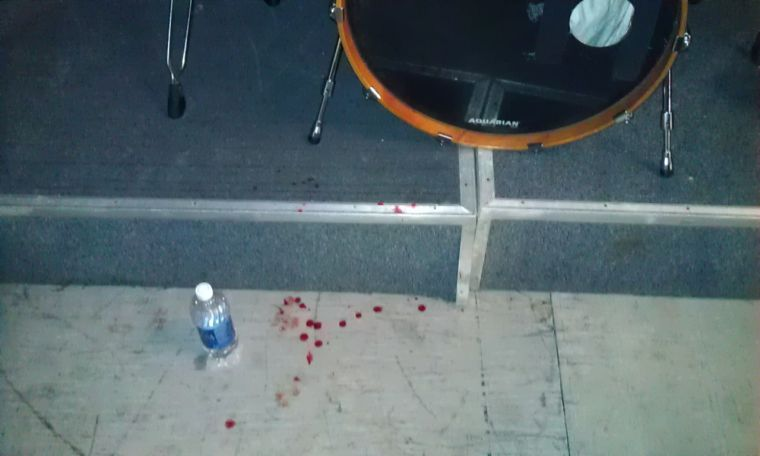 Blood-spattered stage