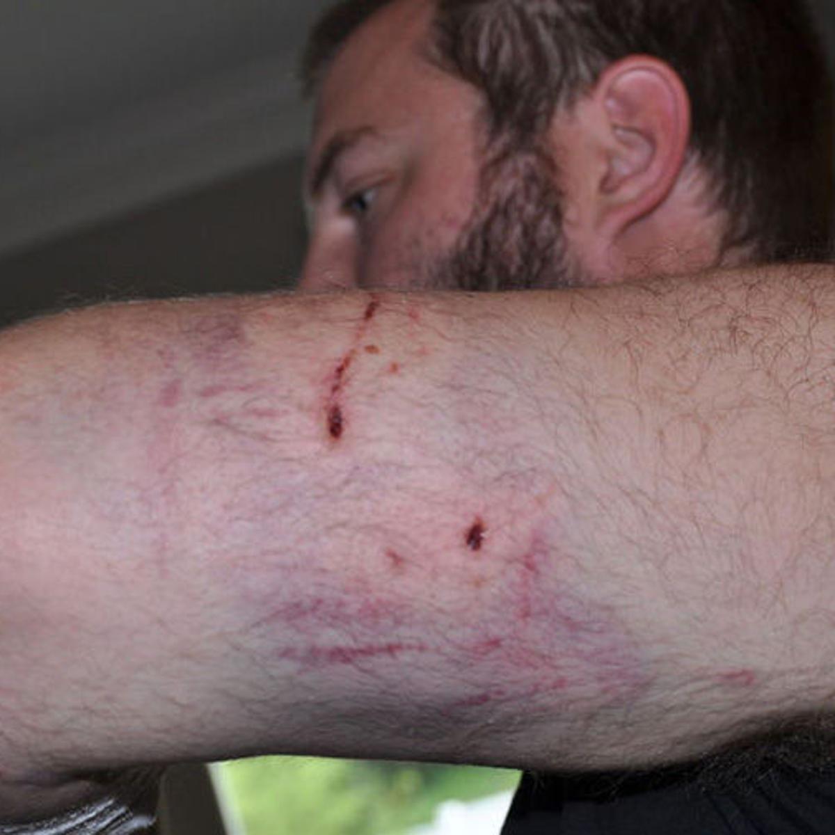Bobcat, not bear or mountain lion, culprit in attack near