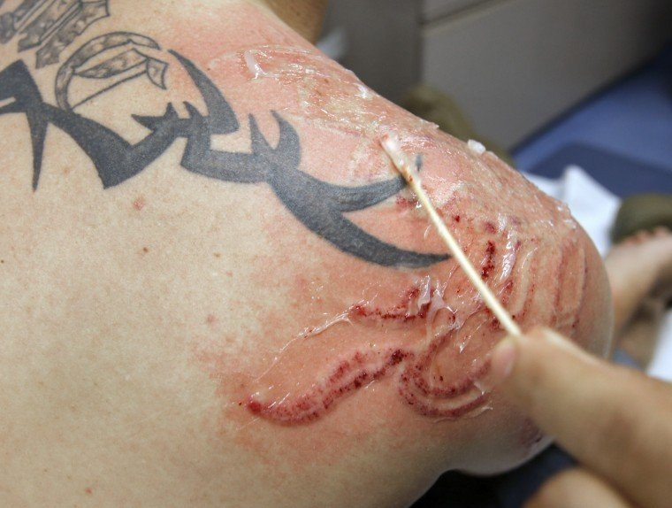 Tattoo removal entertainment for Tattoo bandage removal