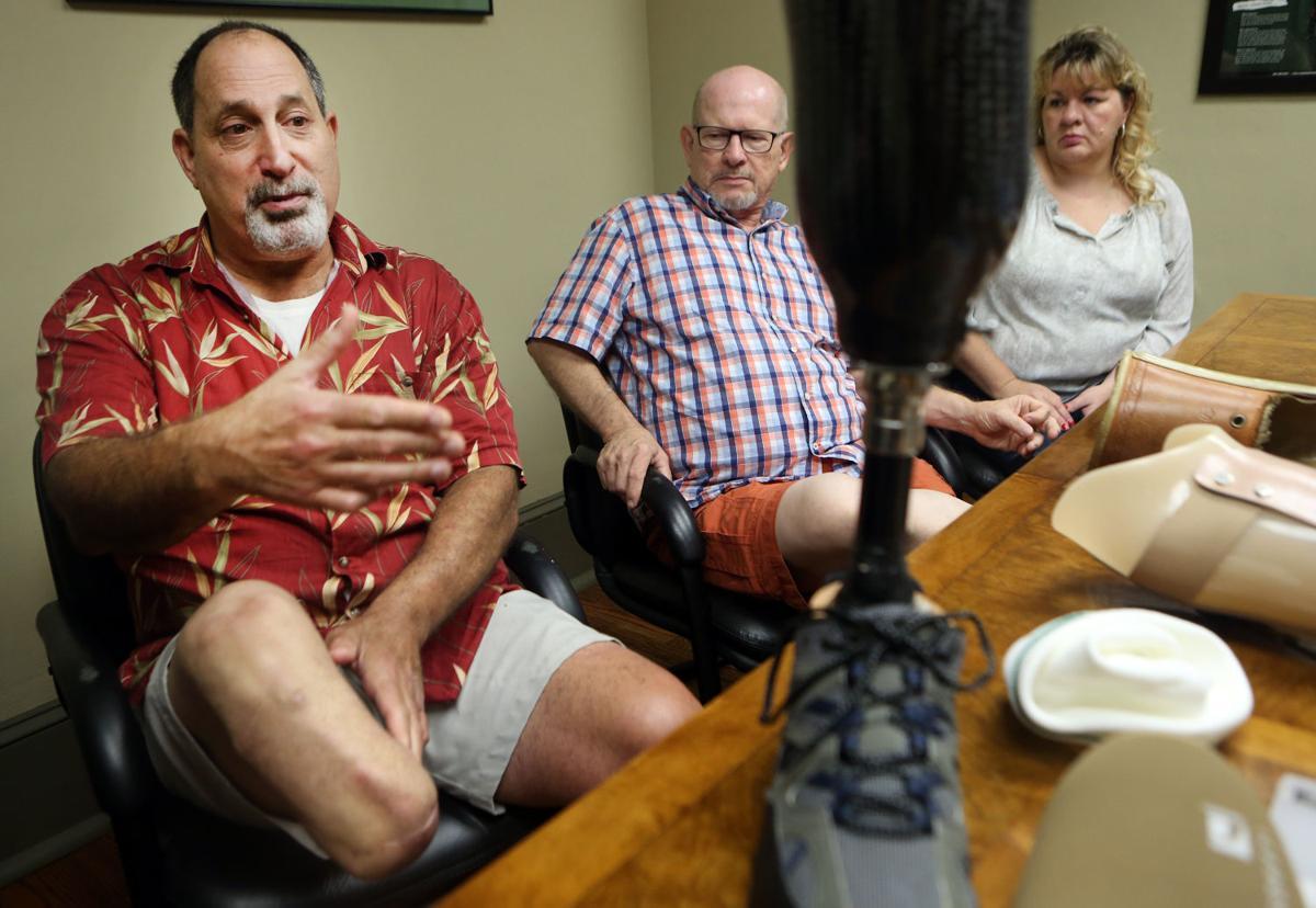 hr prosthetics 082515 p02