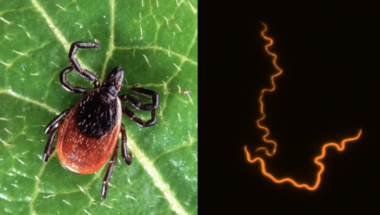 Research finds cellular cause of Lyme arthritis that could lead to treatment