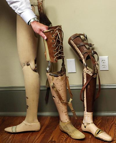 hr prosthetics 082515 p03