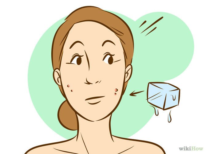 How to get rid of redness on a pimple