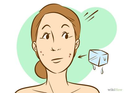 what gets rid of redness in pimples