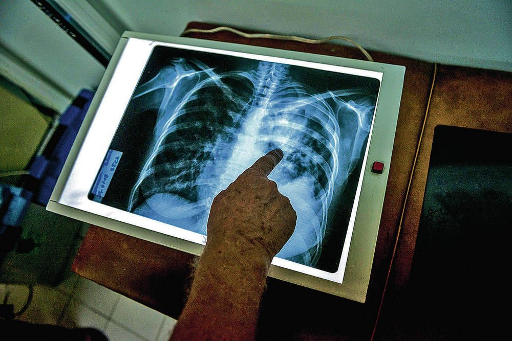 Tuberculosis is disappearing in the U.S. — but not fast enough