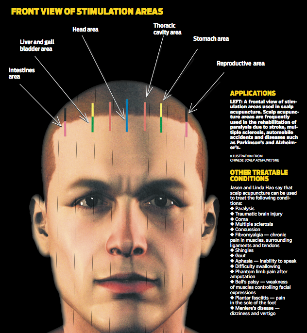 Multiple sclerosis facial paralysis