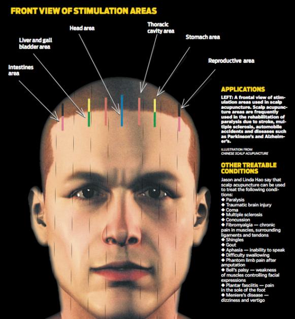 Parkinson s cure accupuncture asian
