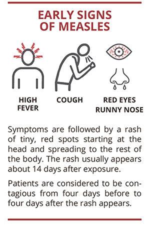 Measles outbreak: Should Scarsdale parents be concerned?