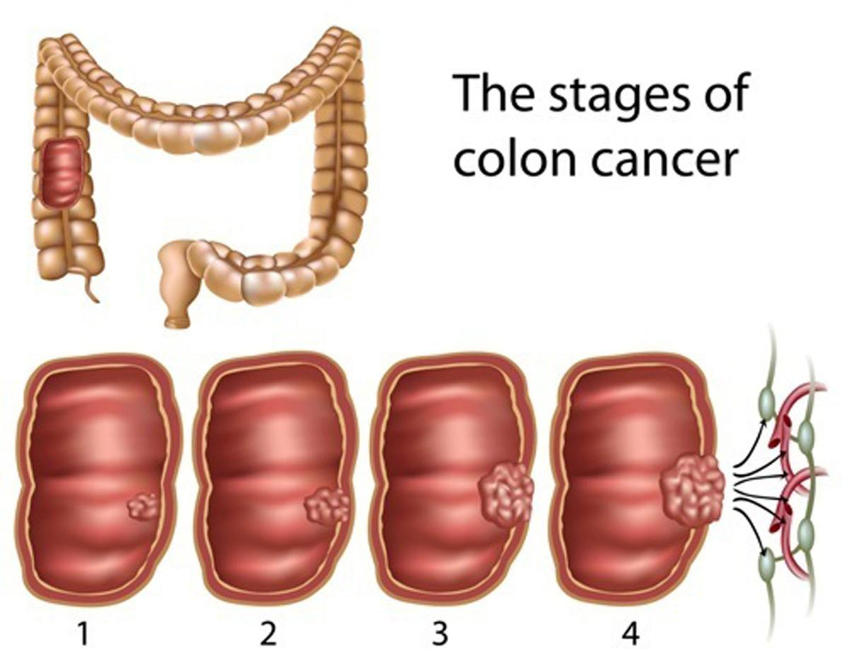 Preventing colon cancer: Silent disease has been taking a big toll ...