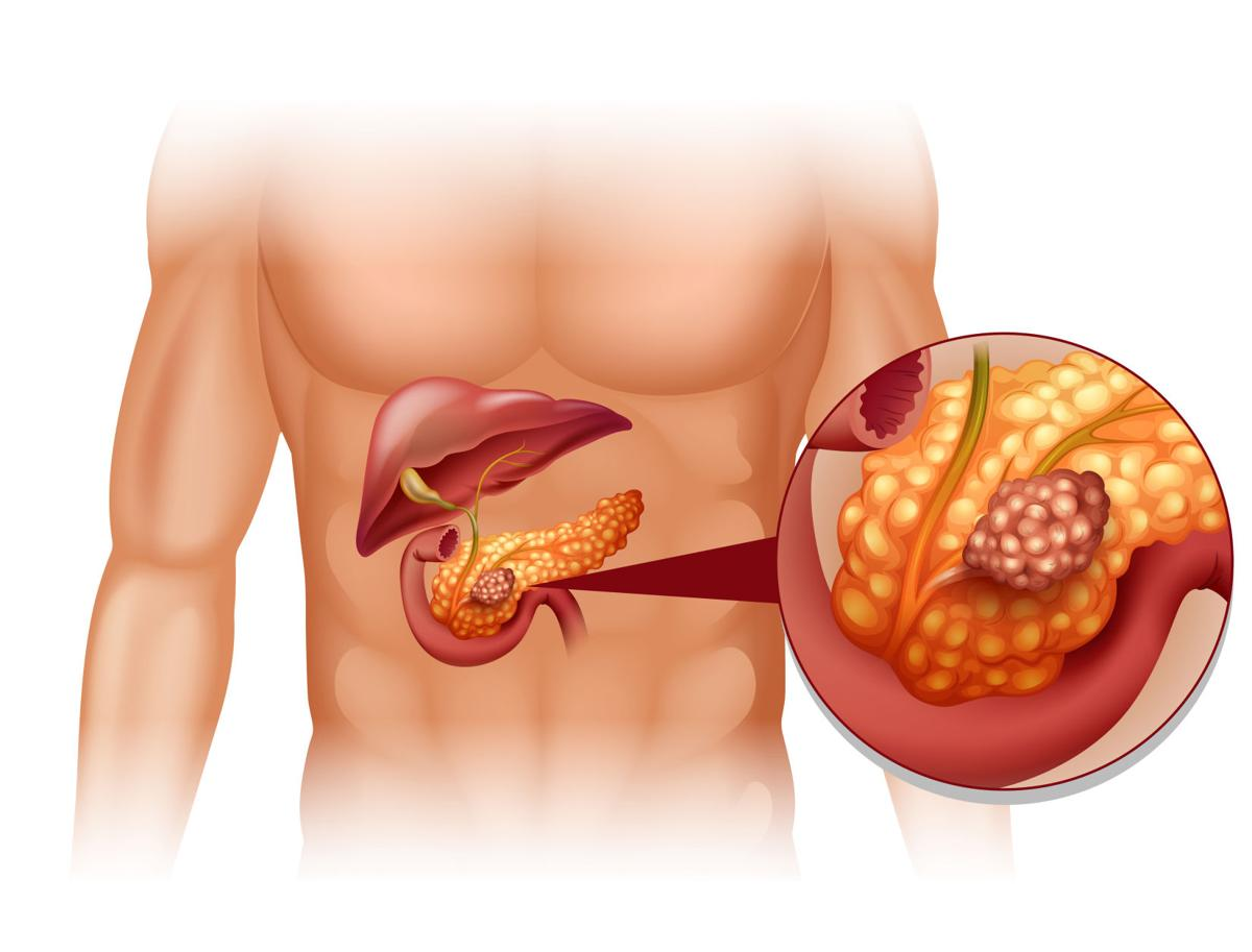 The silent killer: pancreatic cancer   Health   scnow.com
