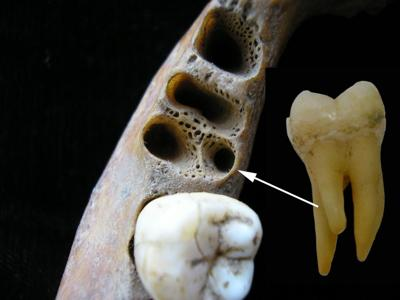 Archaic tooth gives some teeth to theory of interbreeding among different kinds of humans