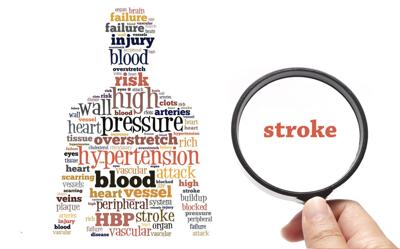 A woman's risk of stroke: Get to know the factors and the