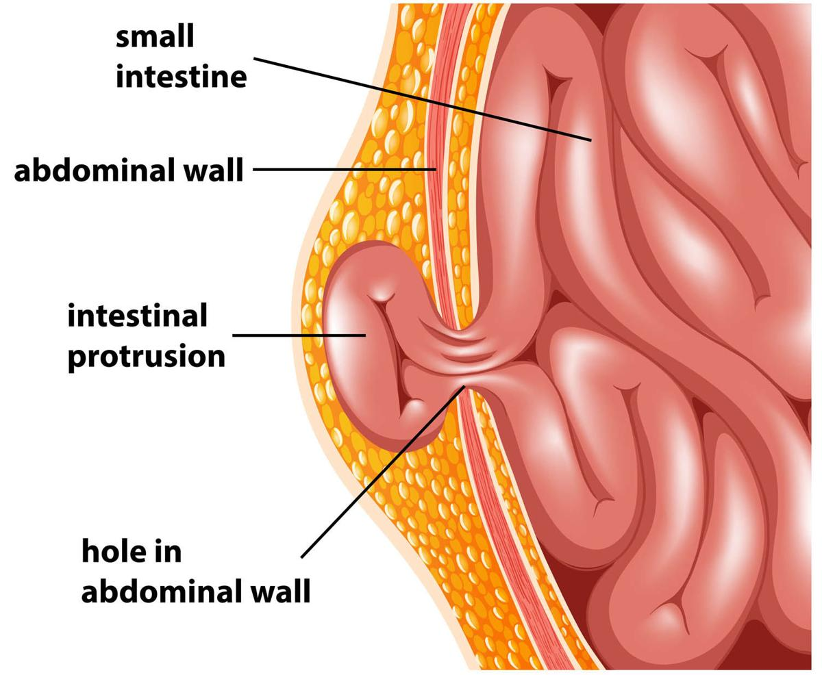 Abdominal Hernias How To Prevent And Repair These Bulges In The