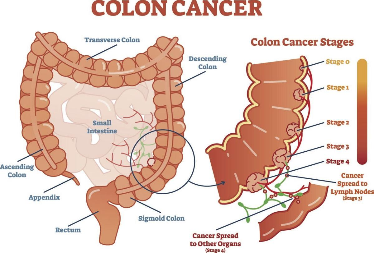 Colon cancer 1