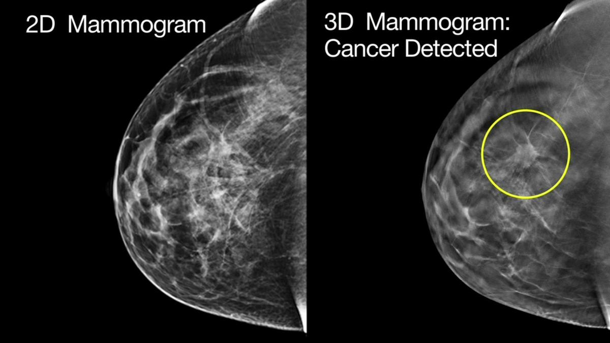 Early Detection Using 3d Mammography Improves Survival Health
