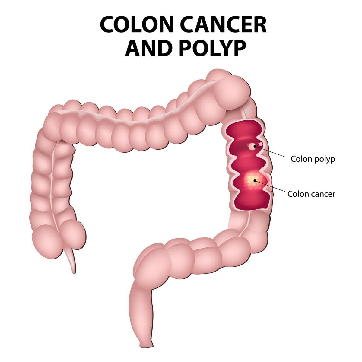 Colon cancer 2