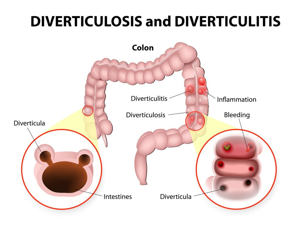 Diverticulosis Can Sneak Up On Older People Health