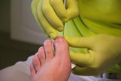 Foot care stock image