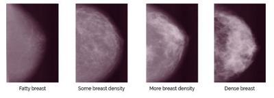 Description of Dense Breast Tissue