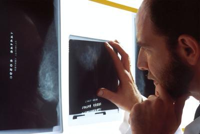 Breast x-ray