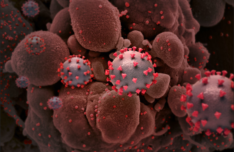 Novel-Coronavirus-SARS-CoV-2-Creative-rendition-of-SARS-Co.png