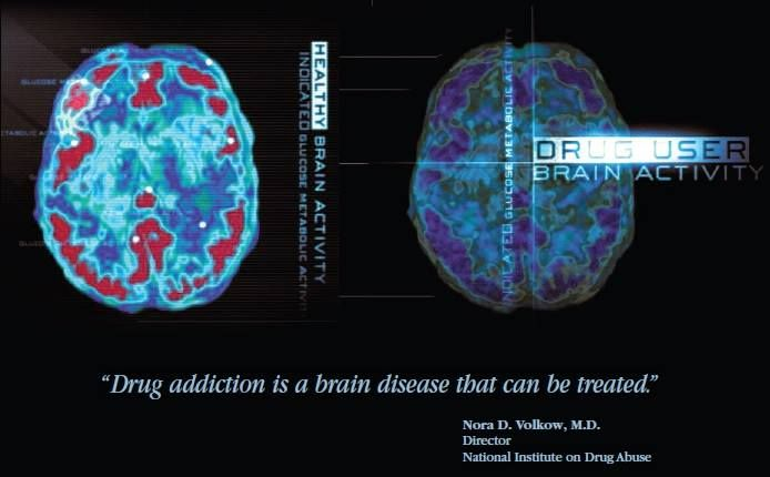 Drug User Brain Activity