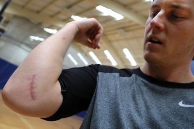 Seth Maness rehabbing elbow