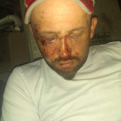 Steven Kolb's injuries