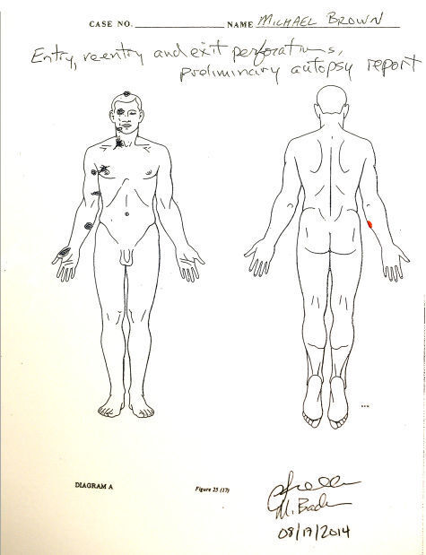 Autopsy sketch of Michael Brown fatal shooting
