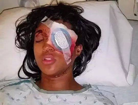 Woman blinded after officer shot bean bag round at car in Ferguson