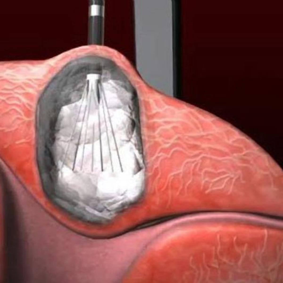 Melting Tumors Is New Option For Women With Uterine Fibroids Health Stltoday Com